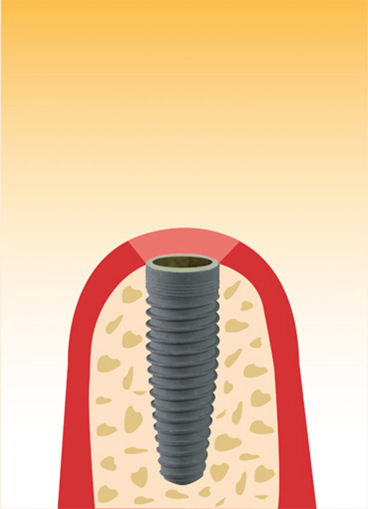 Illustration Implantat Technik